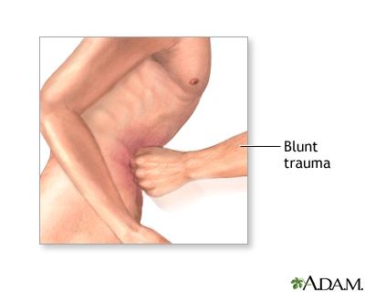 Heridas penetrantes de torax pdf