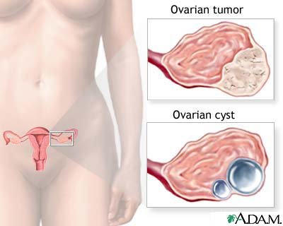 Tumour of the ovary