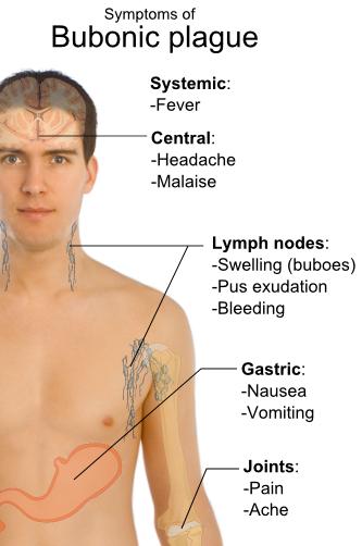 Symptoms_of_bubonic_plague