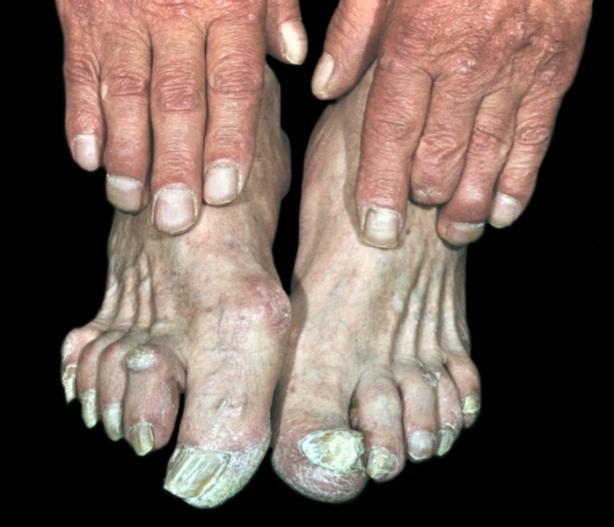 Rubromycosis