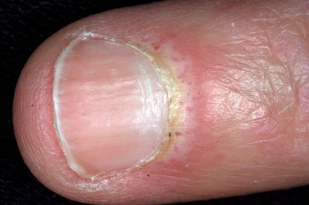 Dermatomyositis at Fingernail