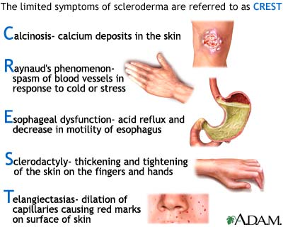 Systemic Sclerosis (scleroderma)