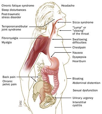 Symptoms and signs of Irritable Bowel Syndrome.
