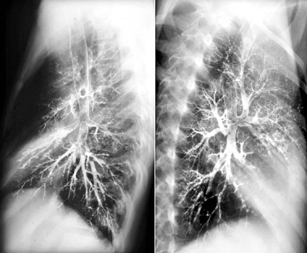 Bronchography COPD Chronic obstructive lung diseases