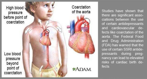 Coarctation-of-the-Aorta