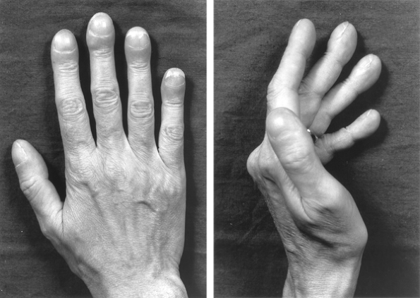 Drumstick Distal PhalangesHands of patient with lung cancer, demonstrating clubbing with increased nail base angle to 180 degrees and fusiform enlargement of the distal digit (so-called drumstick fingers).