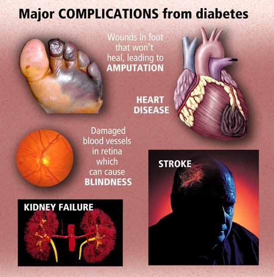 Diabetes Mellitus   : Med Easy   550 x 556 jpeg 26kB
