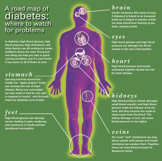 Diabetic Sites: Diabetes Mellitus