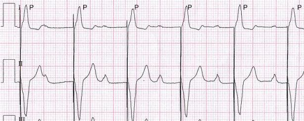 A 77-year-old man with permanent artificial pacemaker. This is his EKG.
