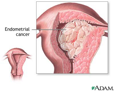 Uterine cancer (endometrial cancer)