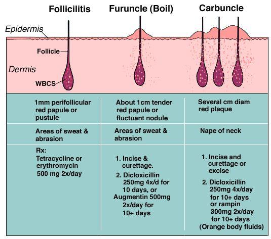 folliculitis_skin_diagram