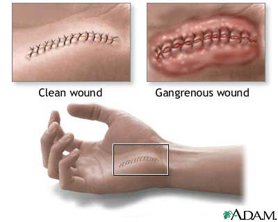 Alternate Names : Tissue infection - Clostridial, Gangrene - gas, Myonecrosis, Clostridial infection of tissues