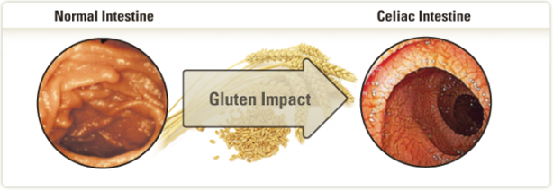 Celiac disease is an increasingly diagnosed chronic inflammatory disorder of the intestine. Damage to the intestine is due to a specific immune response triggered by certain peptides derived from gluten proteins in wheat, rye and barley, and sometimes oats.