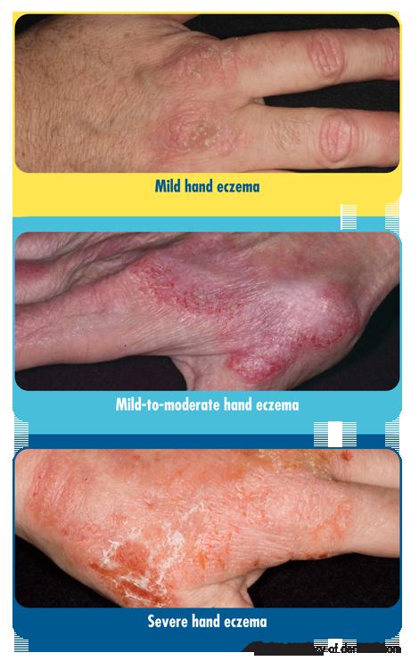Hand_Eczema_Examples