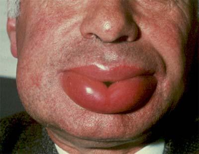 Quincke's edema (Angioedema)