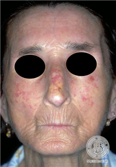 systemic scleroderma - Musk Face