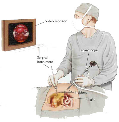 Surgical laparoscopy