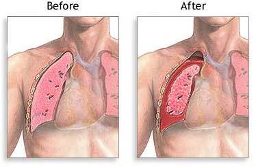 Spontaneous Tension Pneumothorax
