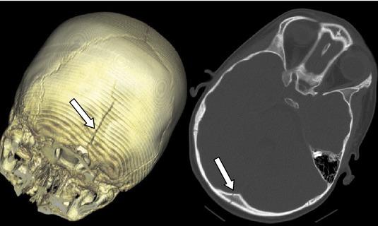 Occipital fracture