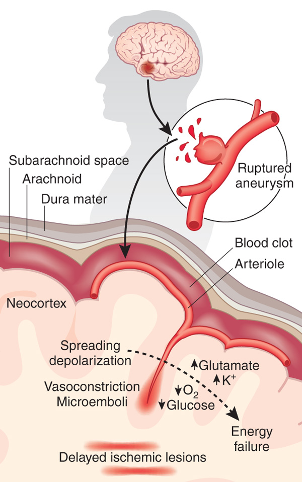 Rupture of a berry aneurysm at the bifurcation of large arteries at the base of the brain leads to escape of blood under pressure into the subarachnoid space, effectively coating the brain surface with clotted blood. Cerebral blood flow and brain glucose are reduced. Small ischemic lesions produced by microemboli set off recurring waves of CSDs, which, due to dysfunction of neurovascular coupling, are associated with paradoxical vasoconstriction and tissue hypoxia. These ischemic CSDs, which impose additional metabolic stress on the energy-depleted brain, worsen oxygen and glucose deficits, promoting the expansion of the lesions.
