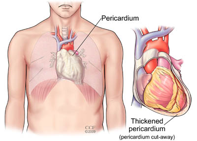 Present when a fibrotic, thickened, and adherent pericardium restricts diastolic filling of the heart.This slowly progresses to a chronic stage consisting of fibrous scarring and thickening of the pericardium with obliteration of the pericardial space