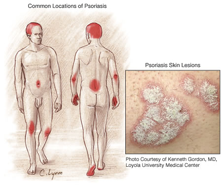 In a recent study of new onset psoriasis, acute streptococcal pharyngitis was verified in 63  of cases (3) 3