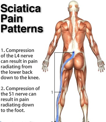 Sciatic-Nerve-Pain-Relief-111