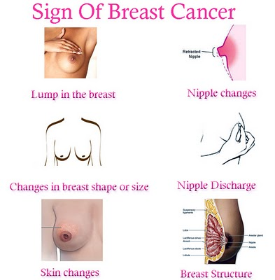 SignOfBreastCancer