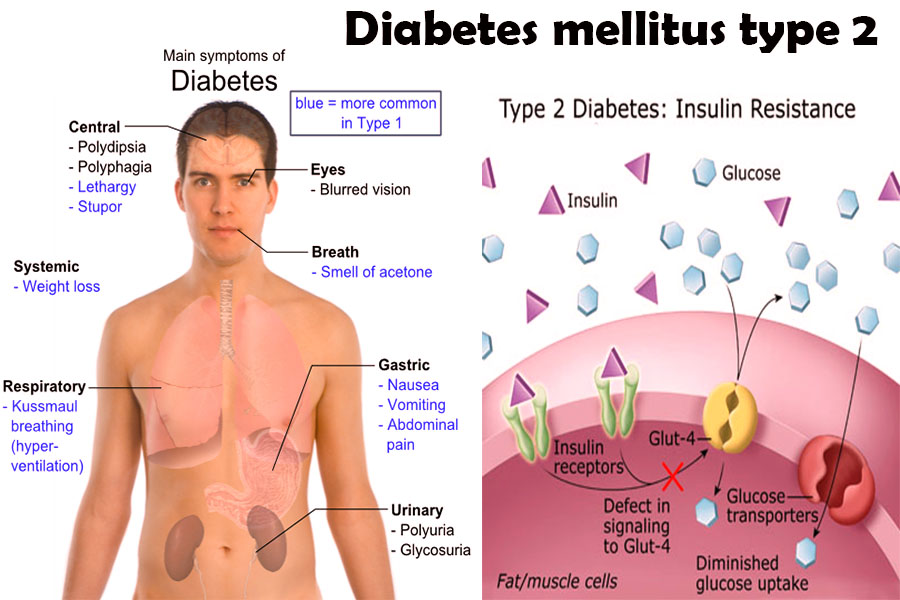 Diabetes mellitus type 2 glucose levels of