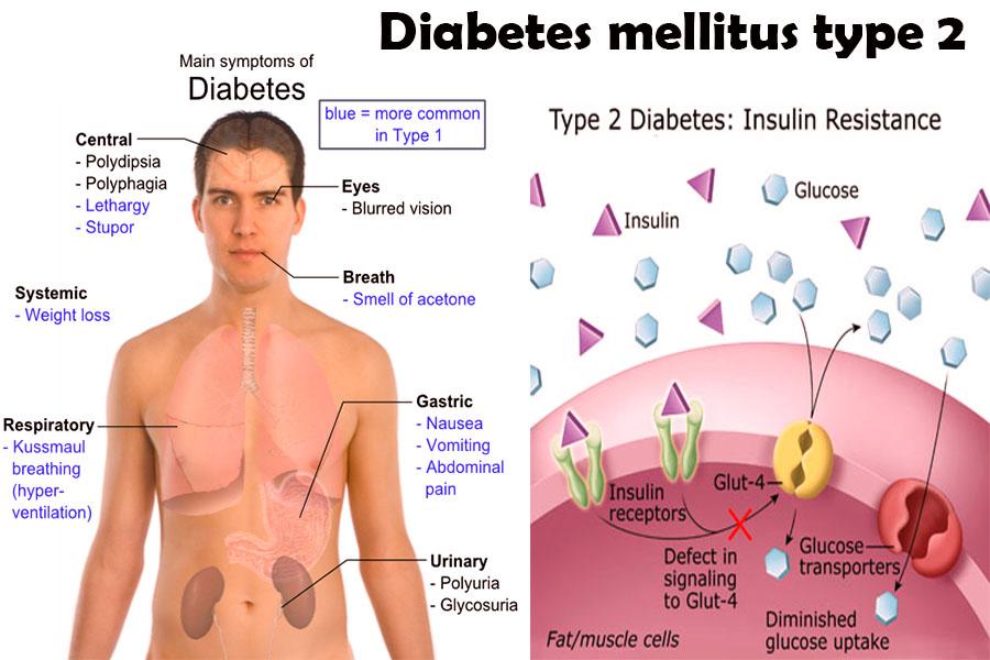 Diabetes Mellitus | : Med Easy :