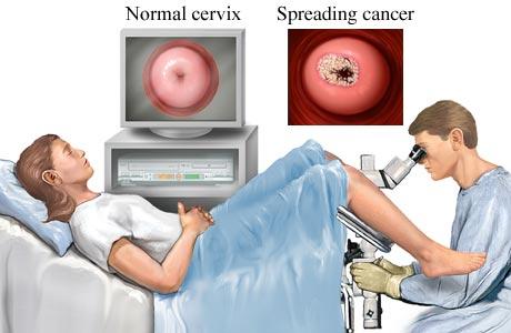 Pap Test Pap Test